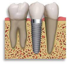 best dental implant doctor in jaipur