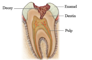 ROOT CANAL TREATMENT IN JAIPUR RCT