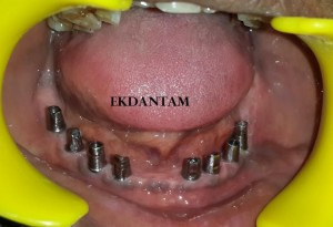Full mouth Dental implant at Ekdantam