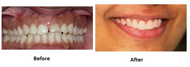 Smile Makeover treatment after and before