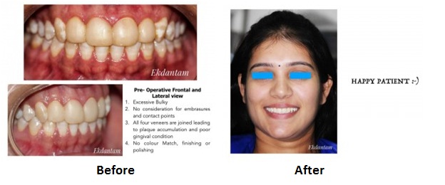 Smile Makeover treatment in clinic in jaipur