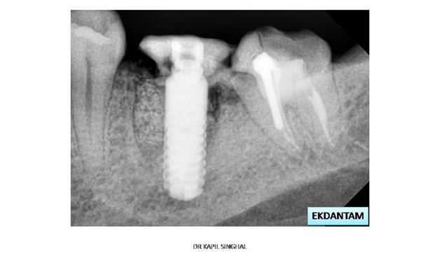 Digital RVG X Ray at Ekdantam Dental Jaipur India