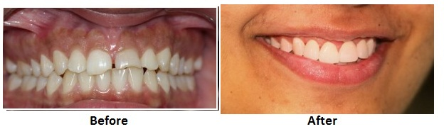 MAL ALIGNED TEETH treatment