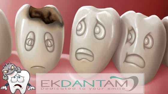 Teeth-Cavities-Tooth-Decay-Causes-Treatment-Pain-prevention