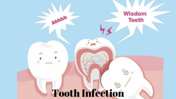 ooth-Infection