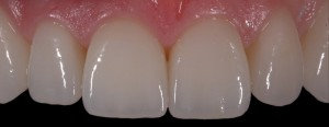 Non-Implant Options for Replacing Teeth