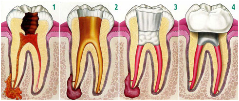 Root canal treatment in Jaipur (RCT) -