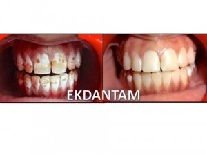 Dental veneers treatment in Jaipur