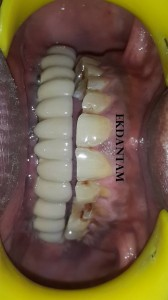After full mouth Dental implant in Jaipur at Ekdantam dental clinic