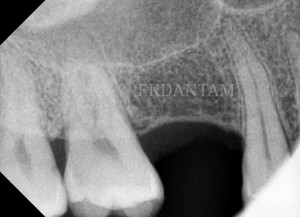 After sinus lift for dental implants at Ekdantam