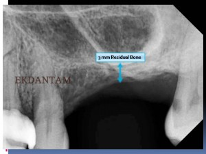 sinus lift for dental implants x-ray