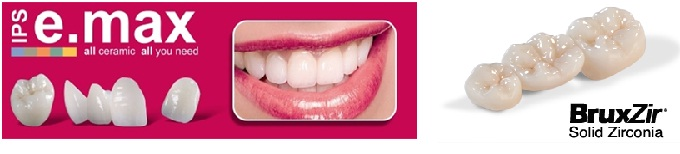 Full Ceramic (Zirconia /Emax Crown) in JAipur
