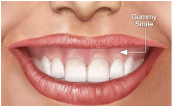 gummy smile surgery at Ekdantam Dental clinic Jaipur,India