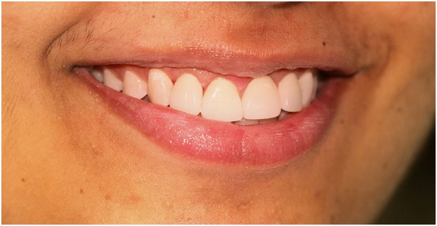 gummy smile surgery in jaipur