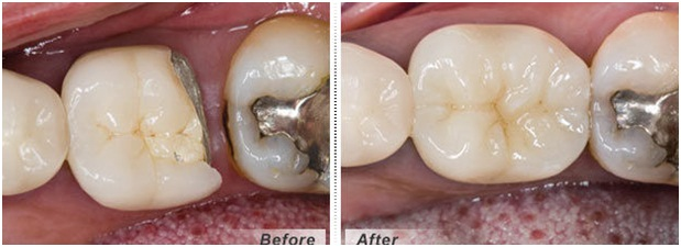 Metal Ceramic Crown ( PFM Crown ) treatment in jaipur