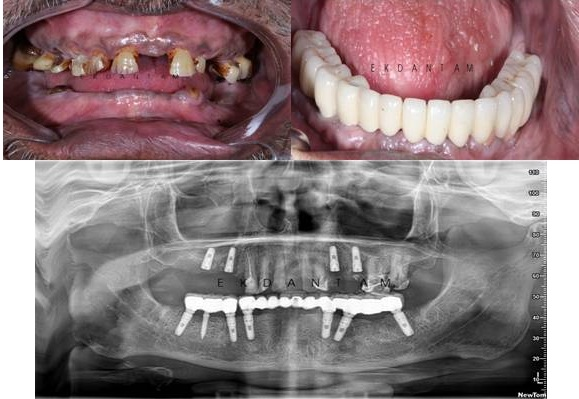 Full Mouth rehabilitation with Dental Implants :Strategic treatment planing