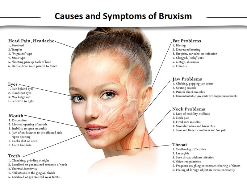 Causes and Symptoms of Bruxism
