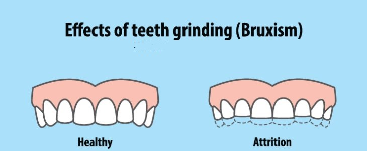 Overview on What is Bruxism and Symptoms and treatment Bruxism (BRUK-siz-um) is a condition in which you grind, snap or clench your teeth. On the off chance that you have bruxism, you may unknowingly clench your teeth when you're (awake bruxism) or clench or grind them amid (sleep bruxism). Sleep bruxism is viewed as a sleep-related development disorder. Individuals who clench or grind their teeth (brux) amid sleep will probably have other sleep disorders, for example, wheezing and delays in breathing (sleep apnea). Mellow bruxism may not require treatment. Be that as it may, in a few people, bruxism can be visit and sufficiently extreme to prompt jaw disorders, cerebral pains, harmed teeth and different issues. After some time, these activities can wear on your mouth and cause permanent harm in this case that they are not tended to. This post will help you to recognize on the off chance that you experience the side effects of bruxism, take in more about what triggers it, and give some here and now and long term treatment alternatives. Since you may have sleep bruxism and be uninformed of it until the point when inconveniences build up, it's imperative to know the signs and side effects of bruxism and to look for consistent dental care. After some time, these activities can wear on your mouth and cause permanent harm in this case that they are not tended to. This post will help you to recognize on the off chance that you experience the side effects of bruxism, take in more about what triggers it, and give some here and now and long term treatment alternatives. Causes and Symptoms of Bruxism The most well-known explanations behind teeth grinding and jaw clenching are pressure and anxiety. This can happen amid the day or while you are sleeping. Regardless of whether you are wide awake, you won't not understand that you are doing it. Bruxism is one of many ways that our body physically shows pressure regardless of whether our brains aren't aware of it. Whenever you are in a high-push circumstance, focus on what's happening in your mouth. It is safe to say that you are clenching your jaw or grinding your teeth around? In case you're one of 8 percent of Americans who experience the side effects of bruxism, at that point you likely are. Other risk factors for bruxism incorporate substance abuse (drugs, liquor, caffeine), sleep apnea, and chomp and arrangement issues. In a few investigations by the American Dental Association, a few examinations discharged signs and symptoms to know about. One obvious approach to knowing whether you experience the side effects of bruxism is awakening with a sore mouth or a tight jaw. You may likewise see that your teeth start to wear down in odd patterns after some time. These progressions won't be evident at first since numerous individuals grind their molars and back teeth that are not generally exceptionally noticeable. On the off chance that you share a bed with someone, that individual may likewise have the capacity to decide if you are grinding your teeth around sleep time. The sound won't be sufficiently loud to wake you up, but rather it could be sufficiently loud for your partner to take note. Long-term jaw clenching can prompt ear infections and headaches. You may imagine that you have an ear contamination or a headache, however, the reason is really the jaw in view of how intently it's identified with alternate parts of your face. Symptoms Teeth grinding or clenching, which might be sufficiently loud to awaken your sleep partner Teeth that are smoothed, fractured, chipped or free Worn tooth enamel, uncovering further layers of your tooth Expanded tooth agony or sensitivity Drained or tight jaw muscles, or a bolted jaw that won't open or close totally Jaw, neck or face torment or soreness Torment that feels like an earache, however it's really not an issue with your ear Dull migraine beginning in the sanctuaries Harm from biting within your cheek Sleep interruption Diagnosis and Treatment of Bruxism The most ideal approach to affirming regardless of whether you experience the side effects of bruxism is to say your symptoms to your dental practitioner at your next arrangement. Your Dentist can survey the wear patterns on your teeth and analyze your jaw to decide if you've been grinding or clenching without acknowledging it. From that point, your dental specialist will probably endorse a mouth monitor, which will keep your teeth from contacting while you sleep and give you a remark into on the off chance that you clench your jaw. It won't take some time before you are awakening torment free and more invigorated because of better sleep. The mouth watch will presumably take some becoming accustomed to, yet it's critical that you stick with it and keep wearing it. Your mouth will change after some time and you'll before long think about how you at any point rested without one. While this approach will stop the symptoms of bruxism, it's anything but a solution for the underlying issues that are causing it in any case. To address those more profound issues, your dental specialist may prescribe a visit to a sleep specialist, who would more be able to completely test for issues like sleep apnea. In the event that bruxism is caused by pressure or anxiety, working with a specialist may resolve those issues and make long haul change.