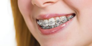 Braces Cost In India Ekdantam Dental Clinic