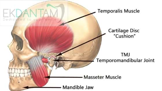 Temporomandibular-Joint-Disorder
